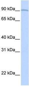 Western blot - AOC2 antibody (ab83734)