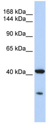 Western blot - G protein alpha S antibody (ab83735)