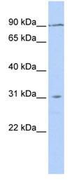 Western blot - TMEM146 antibody (ab83738)