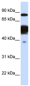 Western blot - Nexilin antibody (ab83746)
