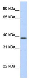 Western blot - SLC25A42 antibody (ab83749)
