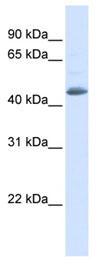 Western blot - SNX5 antibody (ab83750)