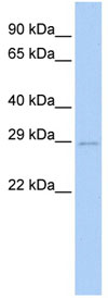 Western blot - E2 EPF antibody (ab83754)
