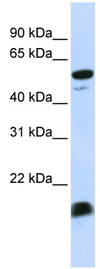 Western blot - C4 binding protein antibody (ab83755)