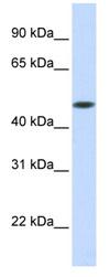 Western blot - GLT8D1 antibody (ab83758)