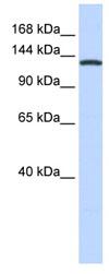 Western blot - valyl tRNA synthetase antibody (ab83759)