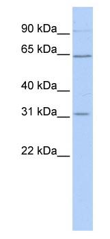 Western blot - SLC27A2 antibody (ab83763)