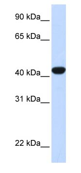 Western blot - Fumarylacetoacetate hydrolase antibody (ab83770)