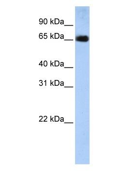 Western blot - SLC22A13 antibody (ab83773)