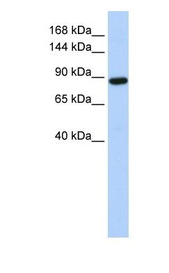 Western blot - HACE1 antibody (ab83776)