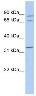 Western blot - Connexin 37 / GJA4 antibody (ab83788)