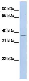 Western blot - SLFNL1 antibody (ab83794)