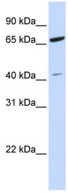 Western blot - ZNF334 antibody (ab83799)
