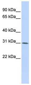 Western blot - WDR33 antibody (ab83802)