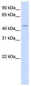 Western blot - ZNF529 antibody (ab83804)
