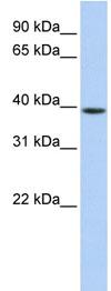 Western blot - G0 Protein alpha antibody (ab83807)