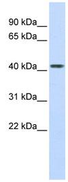 Western blot - Carboxypeptidase B2  antibody (ab83809)