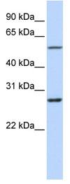 Western blot - IBRDC1 antibody (ab83812)