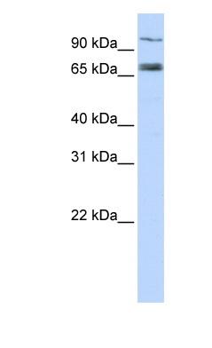 Western blot - TAP1 antibody (ab83817)