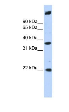 Western blot - SSBP3 antibody (ab83820)