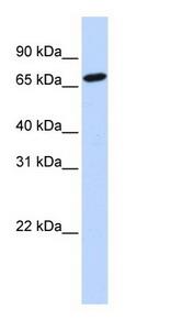 Western blot - Histidase antibody (ab83831)