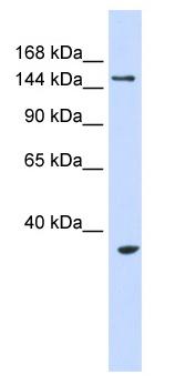 Western blot - UBE3B antibody (ab83834)