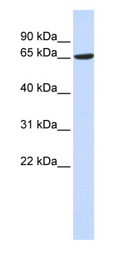 Western blot - ADAM9 antibody (ab83835)