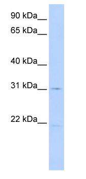 Western blot - SLC25A21 antibody (ab83836)