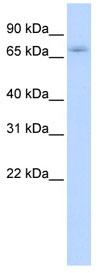 Western blot - ZNF708 antibody (ab83837)