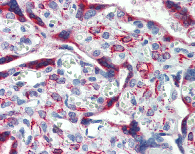 Immunohistochemistry (Formalin/PFA-fixed paraffin-embedded sections) - Anti-IGFBP4 antibody (ab83846)