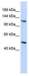 Western blot - HECT E3 ubiquitin ligase  antibody (ab83853)