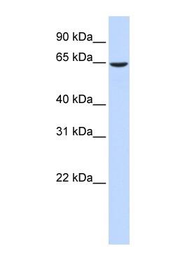 Western blot - EHD4 antibody (ab83859)