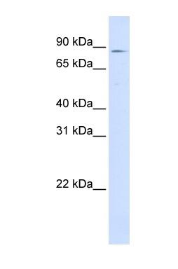 Western blot - CPT1A antibody (ab83862)