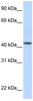 Western blot - DENND1B antibody (ab83864)