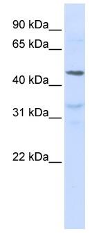Western blot - IL28 Receptor alpha antibody (ab83865)