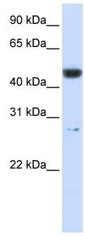 Western blot - PGLS antibody (ab83867)