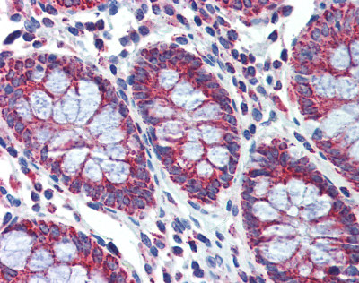 Immunohistochemistry (Formalin/PFA-fixed paraffin-embedded sections) - Anti-PGLS antibody (ab83867)