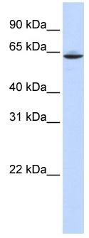 Western blot - SLC33A1 antibody (ab83868)