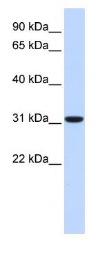 Western blot - CA8 antibody (ab83869)
