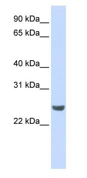 Western blot - NKIRAS1 antibody (ab83872)