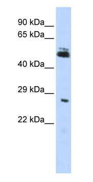 Western blot - LOC285498 antibody (ab83874)