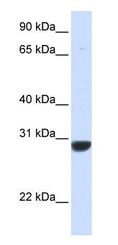 Western blot - PNPO antibody (ab83875)