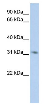 Western blot - MPG antibody (ab83878)