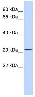Western blot - C1ORF111 antibody (ab83880)