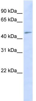 Western blot - C3orf17 antibody (ab83881)