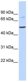 Western blot - BAAT antibody (ab83882)