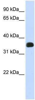 Western blot - C2ORF47 antibody (ab83884)