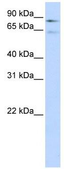 Western blot - Factor XIII antibody (ab83895)