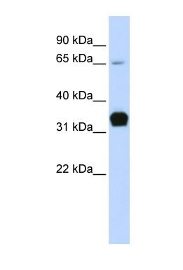 Western blot - Troponin T1 antibody (ab83907)