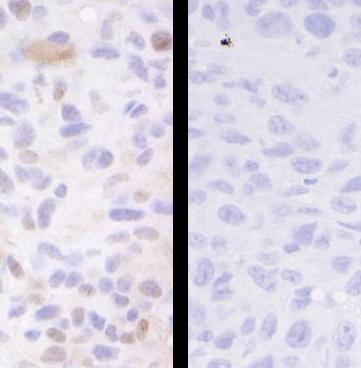 Immunohistochemistry (Formalin/PFA-fixed paraffin-embedded sections) - SMC3 (phospho S1083) antibody (ab83970)